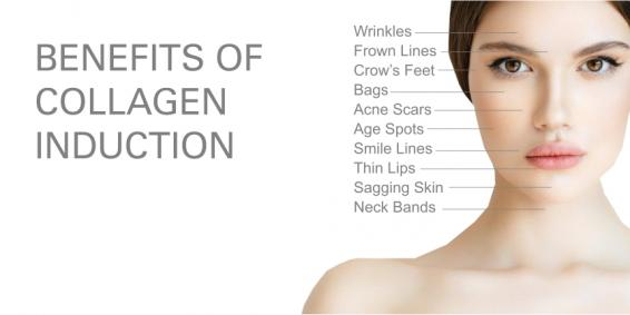 WHAT CAN I EXPECT FROM A COLLAGEN INDUCTION TREATMENT?